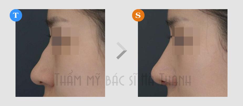 Hình ảnh trước sau phẩu thuật nâng mũi tại Thẩm mỹ bác sĩ Hà Thanh